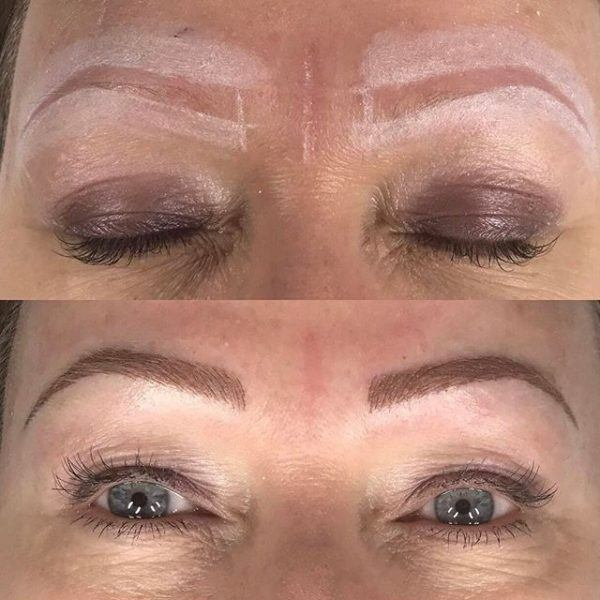 Microblading eyebrows for thyroid patients