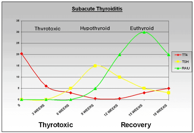 subacute thyroiditis recovery time