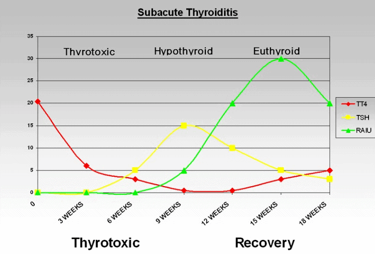 thyroid lab tests overtime with subacute thyroiditis