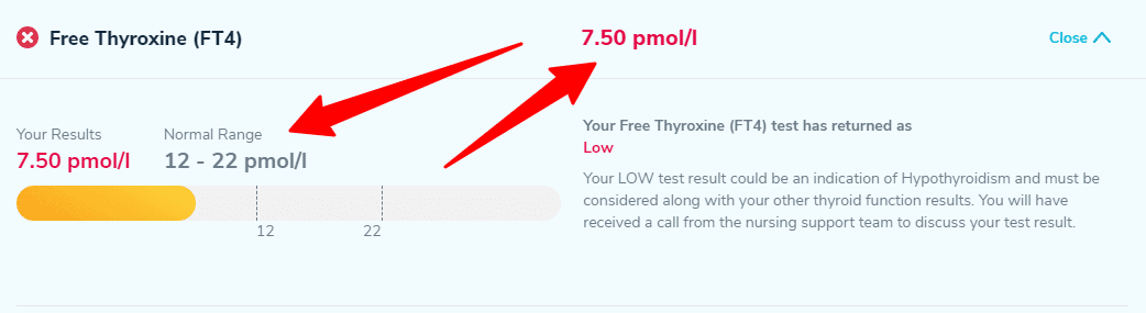 low free T4 on thyroid lab tests