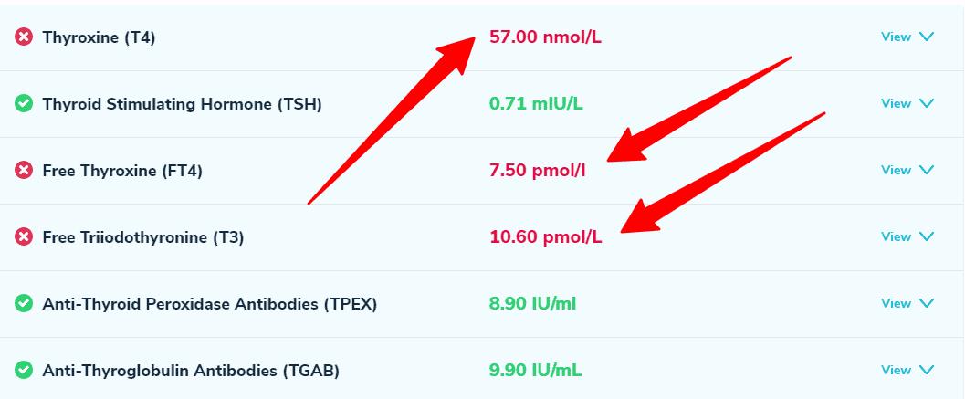 optimal thyroid lab test example