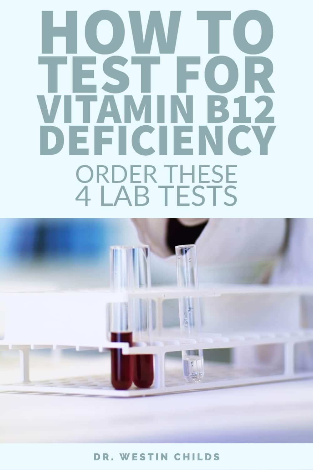 these 4 tests are required to diagnose vitamin b12 deficiency