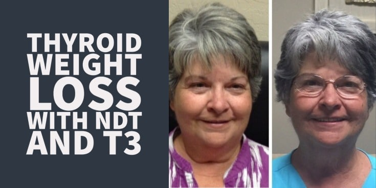 thyroid weight loss case study