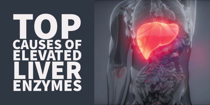 Top causes of elevated liver enzymes