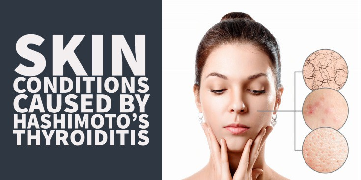 15 Skin Conditions Caused By Hashimoto's Thyroiditis