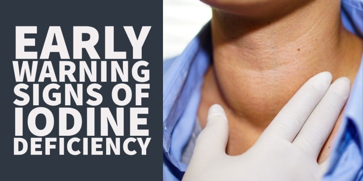 Early warnings signs of iodine deficiency