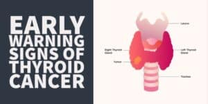 Thyroid Cancer Symptoms & Early Warning Signs