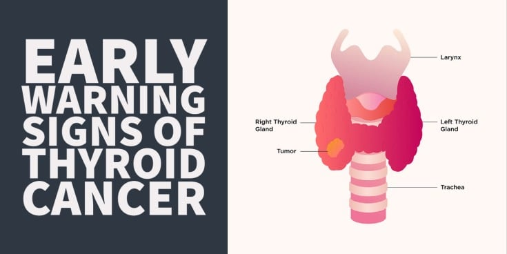 Thyroid cancer symptoms and early warning signs