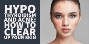 Why Hypothyroidism Causes Acne & What to do About it
